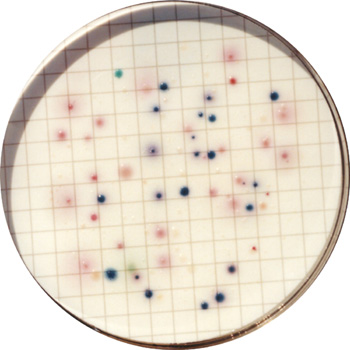 How To Identify Bacterial Colonies Using Coliscan Easygel